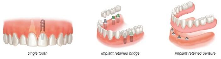 Dental Implants Options: Single tooth, several teeth or complete set of dentures.