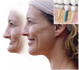 Jaw restoration image after dental implants: before and after