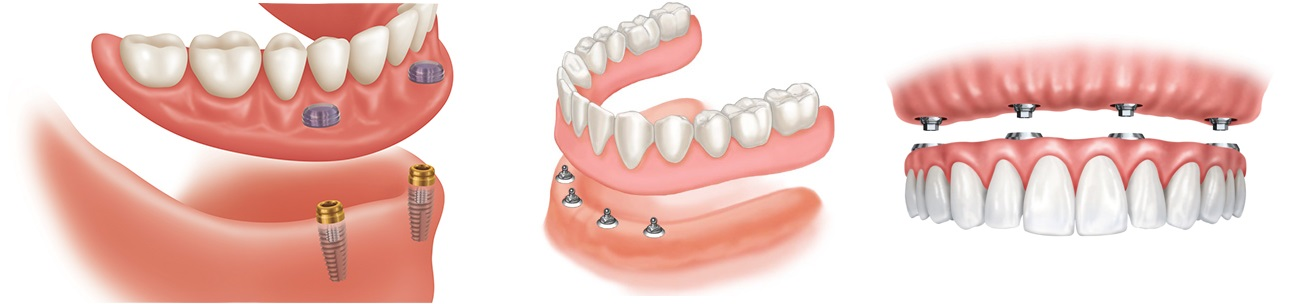 Image showing how dental implants can be 2 screws or more.