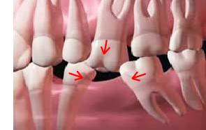 Dental Implants: Bite force image