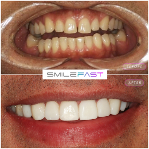 smile fast before and after: Book your free online cosmetic traetment consultation
